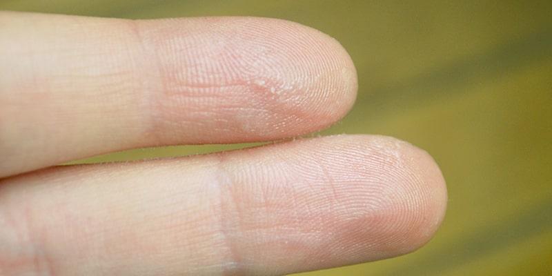 چگونه چسب قطرهای 123 را از روی دست پاک کنیم؟